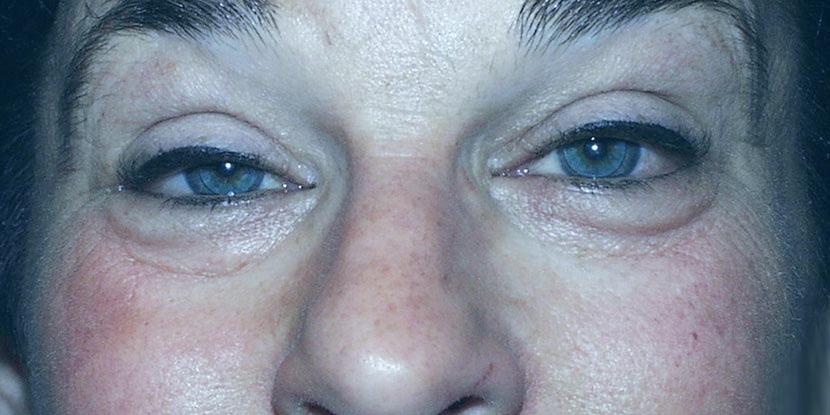 Es la caída del parpado superior en uno o ambos parpados. Puede ser leve o cubrir la totalidad del ojo. Esta enfermedad puede… Leer más…